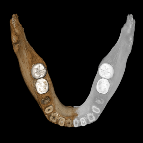 virtual reconstruction-of-the-xiahe-mandible-upper-view